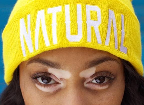 Top Model Contestant with Vitiligo Smashes Stereotypes