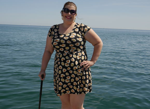 What it's Like to Have a Limp (and Use a Cane) at 26